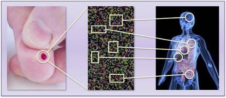 Nieuwe technologie kan diagnose MS en alzheimer vereenvoudigen