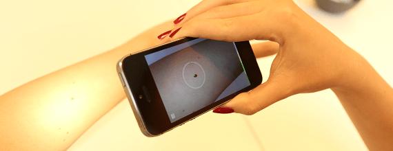 Catharina Ziekenhuis doet baanbrekend onderzoek naar huidkanker app