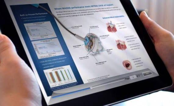 Inzet tablet verbetert begrip patiënt over een procedure