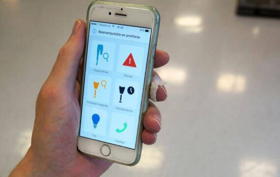 Een app voor beenprothesegebruikers