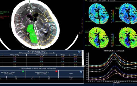 Philips wil beeldbeheer en –interpretatie radiologie op volgend niveau brengen