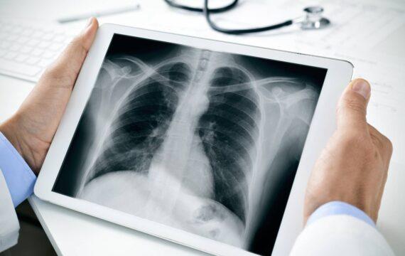 COPD-pilot zorg-op-afstand platform moet heropname voorkomen