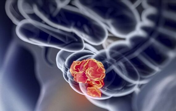 Platform moet onderzoek naar darmkanker verbeteren