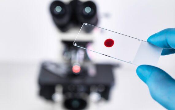 Technologie moet praktische behandelmethoden hart- en vaatziekten bevorderen