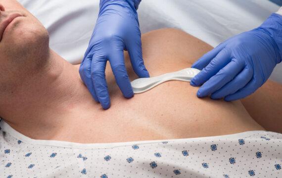 Continue monitoring moet sneller bijwerking kankertherapie vinden