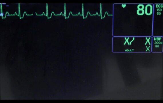 Hacken bewakingsstations kan tot foute besluiten arts leiden