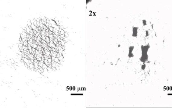 Nanozwermen kunnen bloedklonters oplossen, medicatie afleveren