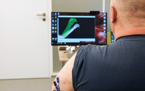 UMCG onderzoekt effect AR / VR-behandeling tegen fantoompijn