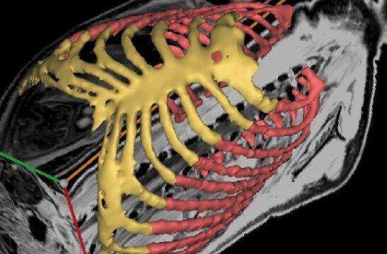 Máxima MC zet 3D-geprinte baby dummy in voor reanimatieprocedure