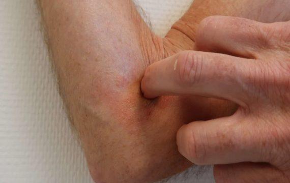 'Huidpatiënten minder snel naar ziekenhuis door teleconsult'