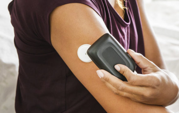 flash glucose monitoring ook na 18e vergoed