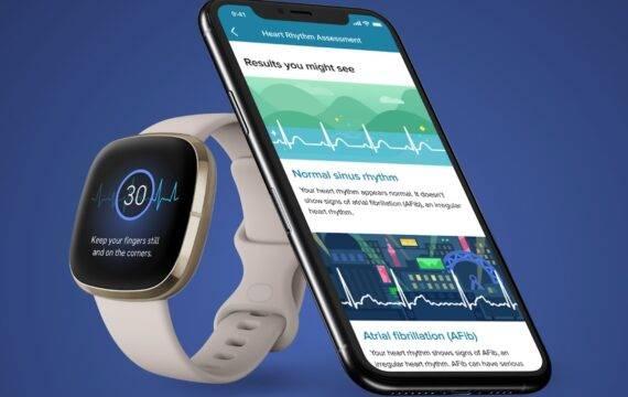 Fitbit ECG-app officieel goedgekeurd in VS en EU