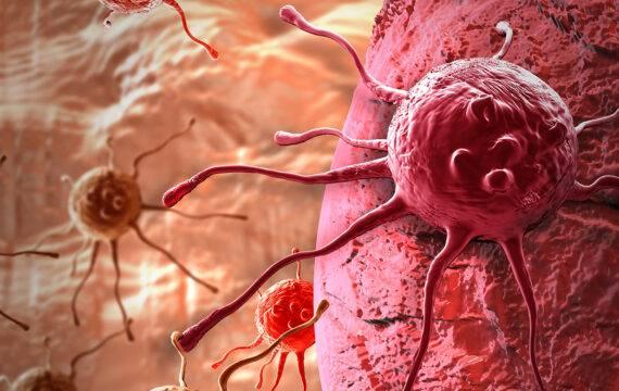 Kanker-op-een-chip onderzoek naar uitzaaiingen