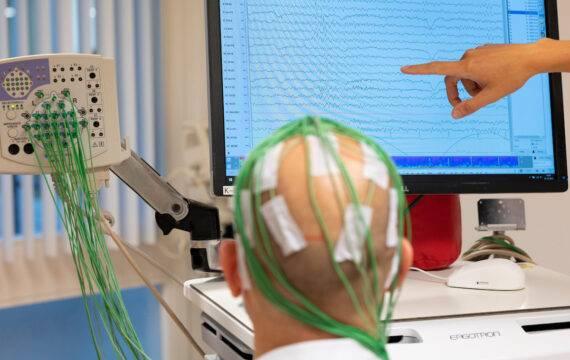 AI-technologie beoordeelt noodzaak van een hersenoperatie
