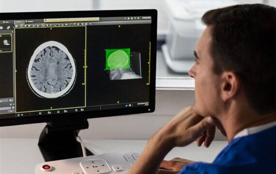 Philips ontwikkelt AI-ondersteunde CT-diagnostiek