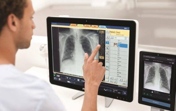 Radiology Smart Assistant Philips dient als virtuele coach