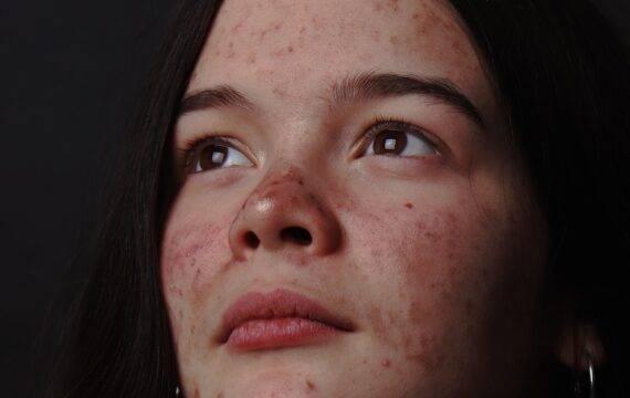 Bacteriën op de huid detecteren met een smartphone