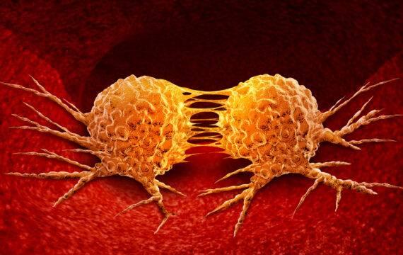 Landelijk expertiseplatform Primaire Tumor Onbekend van start
